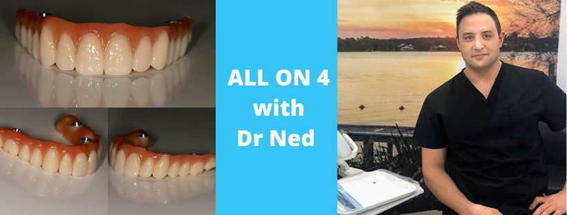 dr ned restom talks all on 4